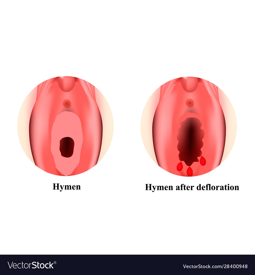 Free hymen pictures
